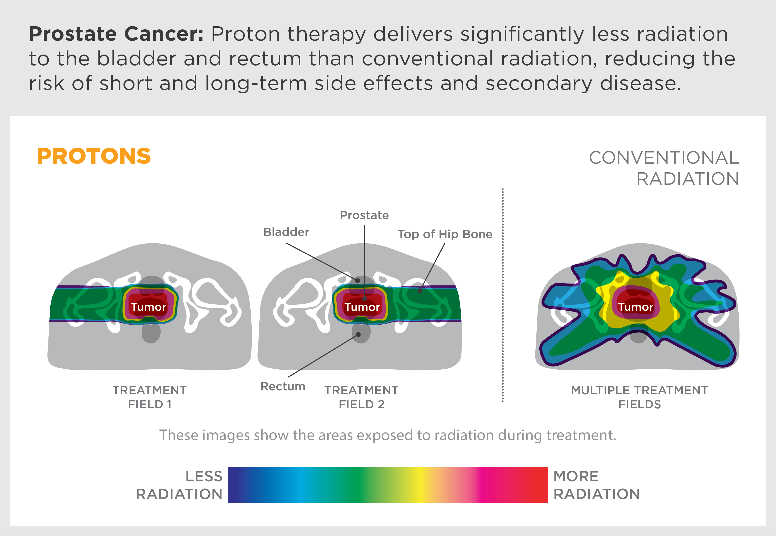 Proton Beam Therapy: How Protons are Revolutionizing Cancer Treatment