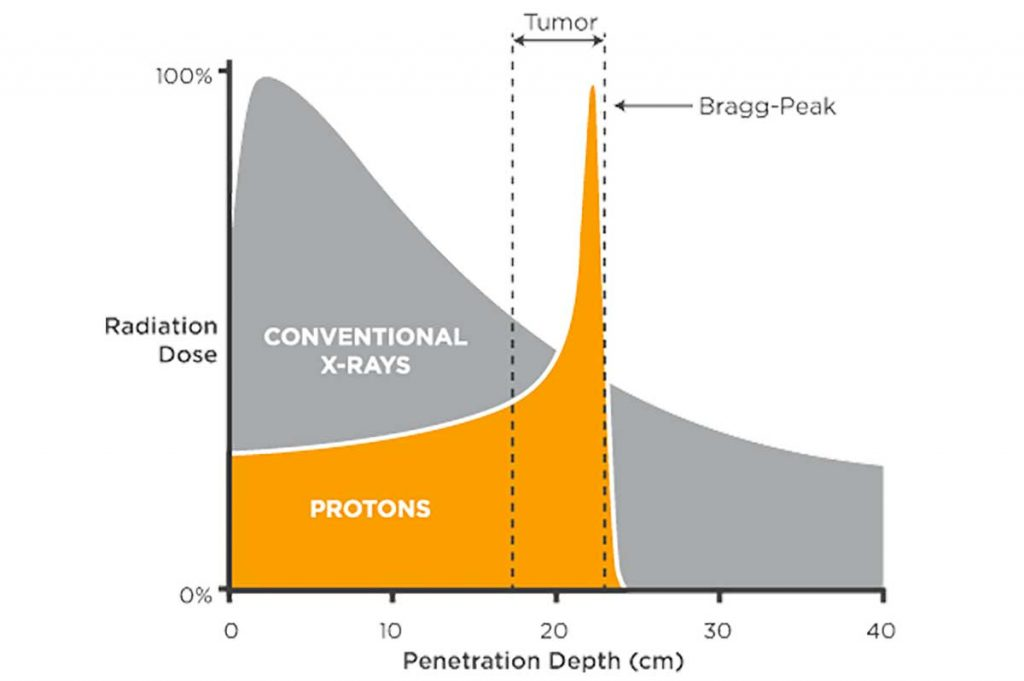 Bragg peak shows how radiation therapy treatment using protons releases maximum energy at tumor site