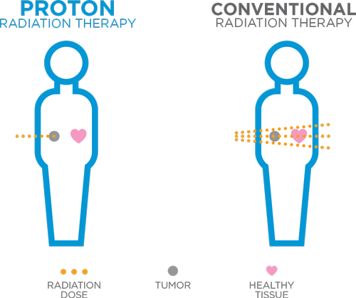 Precision of Proton Therapy | Advanced Radiation Therapy for Cancer Treatment
