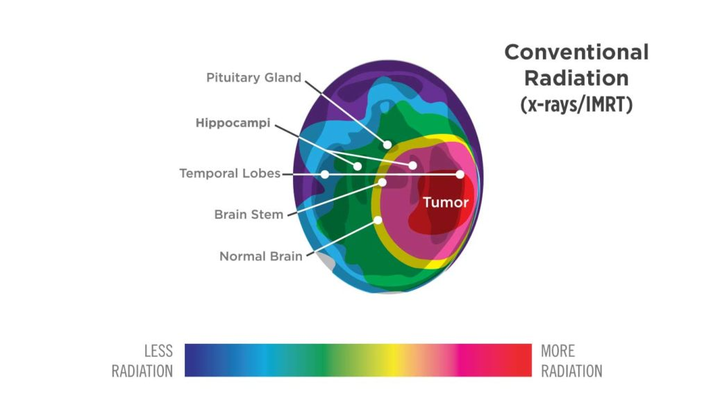 Proton Therapy Treatment for Brain Cancer | Treating Brain