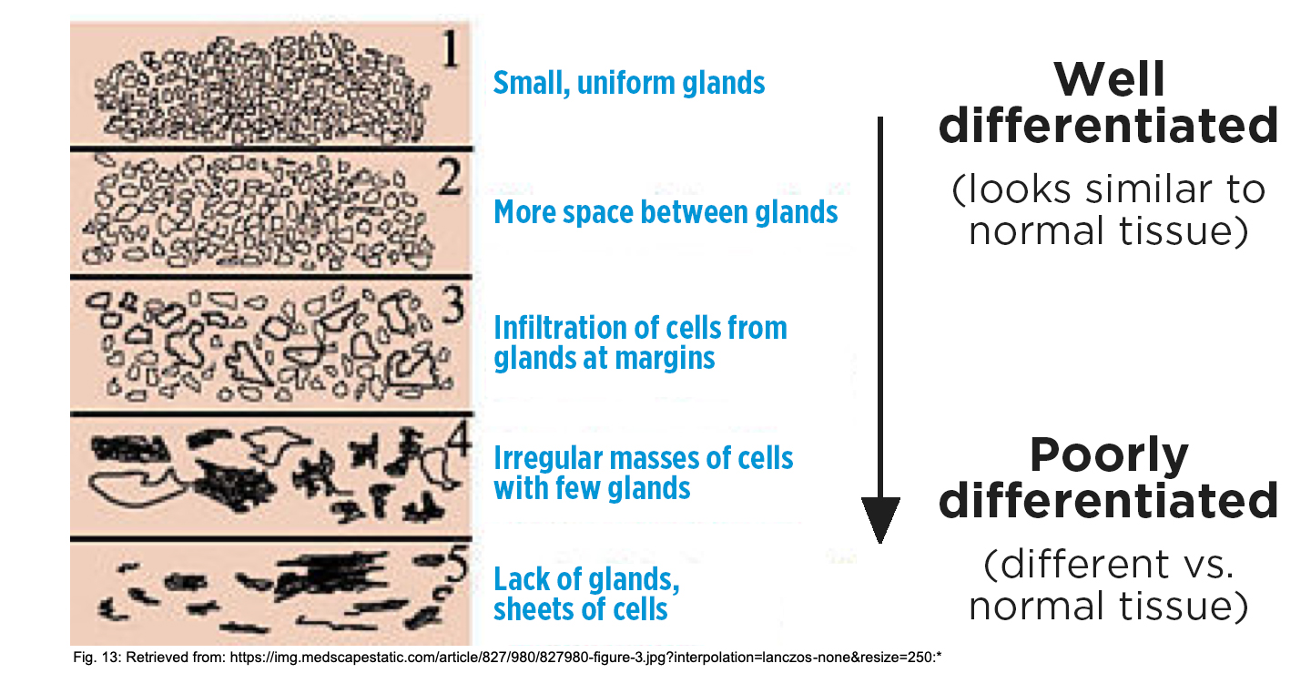 Gleason score is determined by how similar the glands look to normal tissue