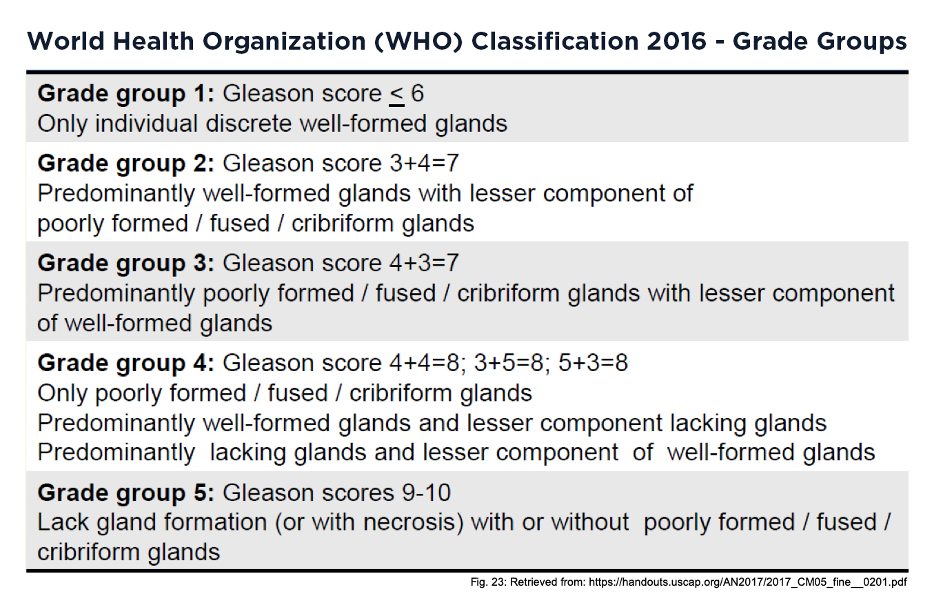 Prostate cancer grade groups based on Gleason score