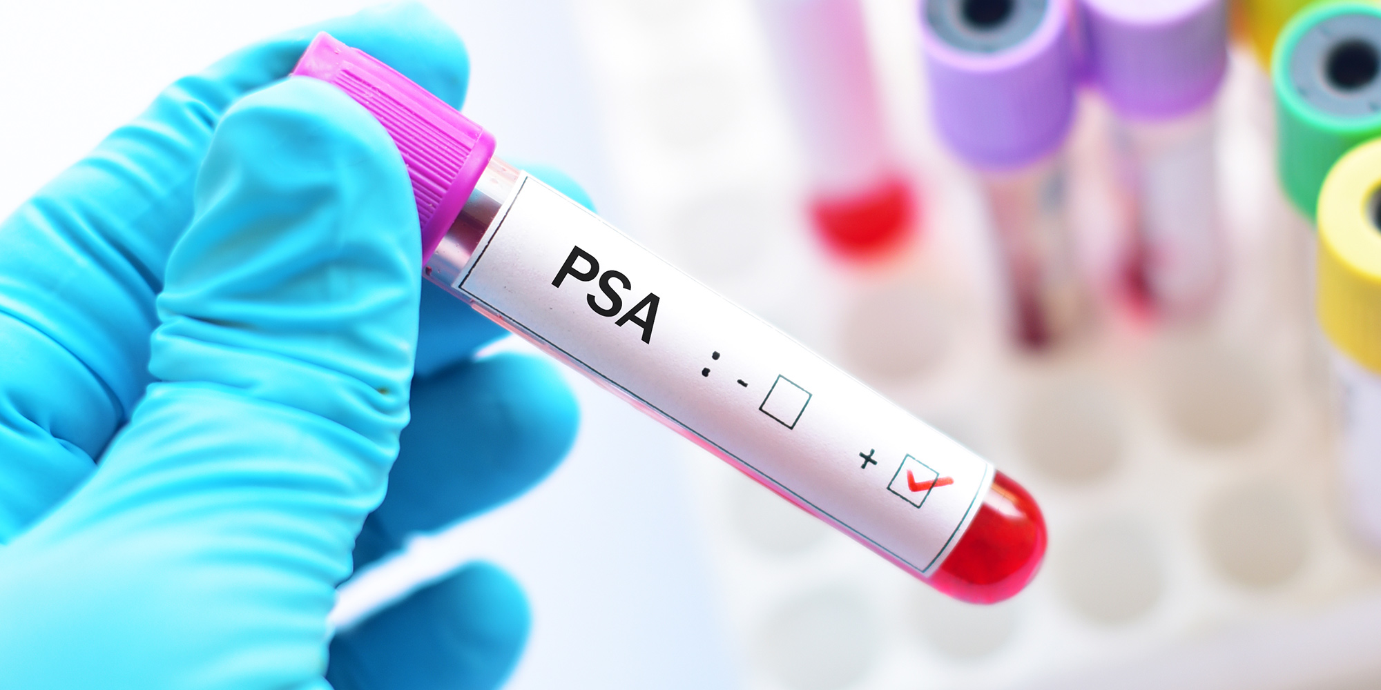 Study finds PSA test for prostate cancer has long-term benefits
